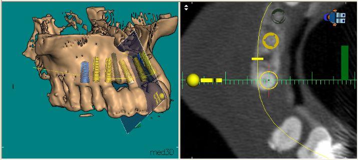 Implantatplanung anhand eines 3D-Röntgenbildes im Implantatzentrum der Dentalpraxis Kaltenkirchen