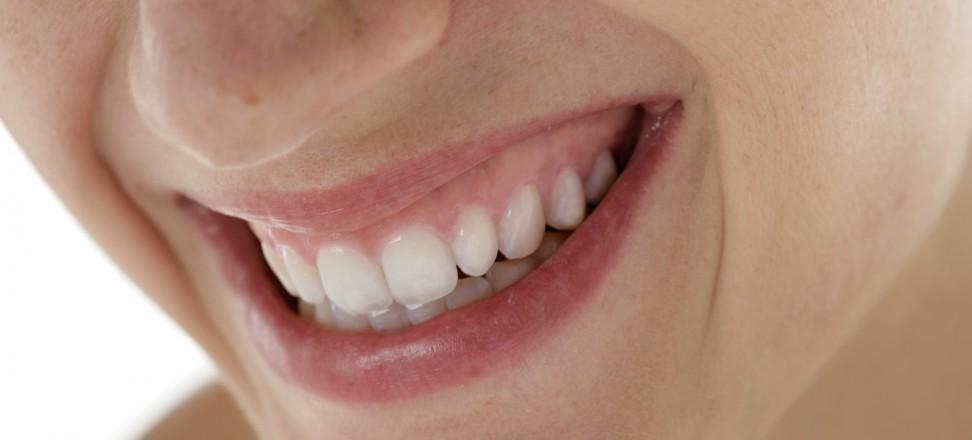 Schöne Zähne; Quelle: Initiative proDente