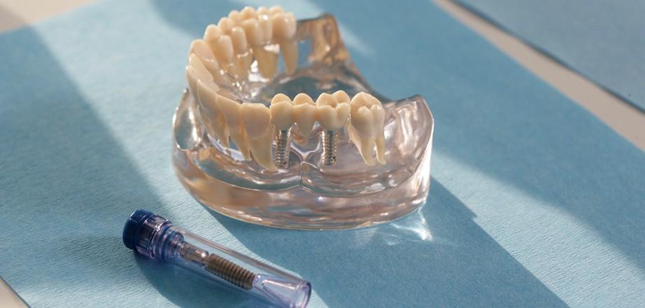 Zahnimplantat_Quelle_Initiative proDente