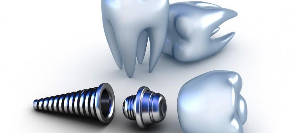 Zahnimplantate mit 3D-Planung | Quelle: shutterstock_Alex Mit